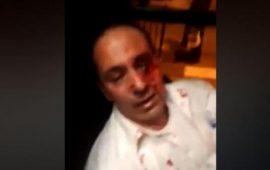 مستوطنون يعتدون بوحشية على سائق حافلة عربي من القدس