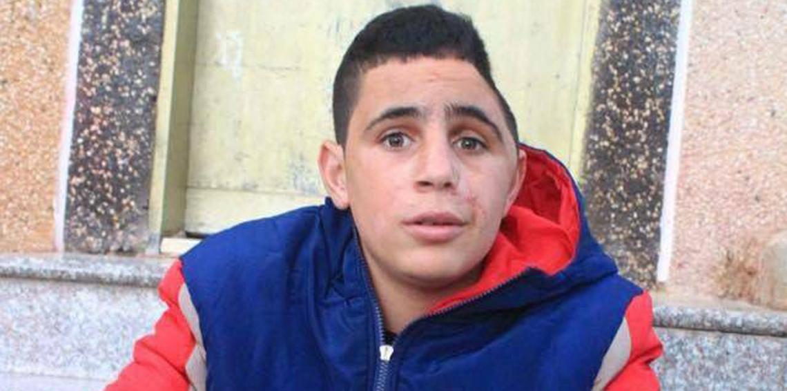 Photo of تقرير إسرائيلي يكذب ادعاءات جيش الاحتلال بعدم مسؤوليته عن إصابة الطفل التميمي