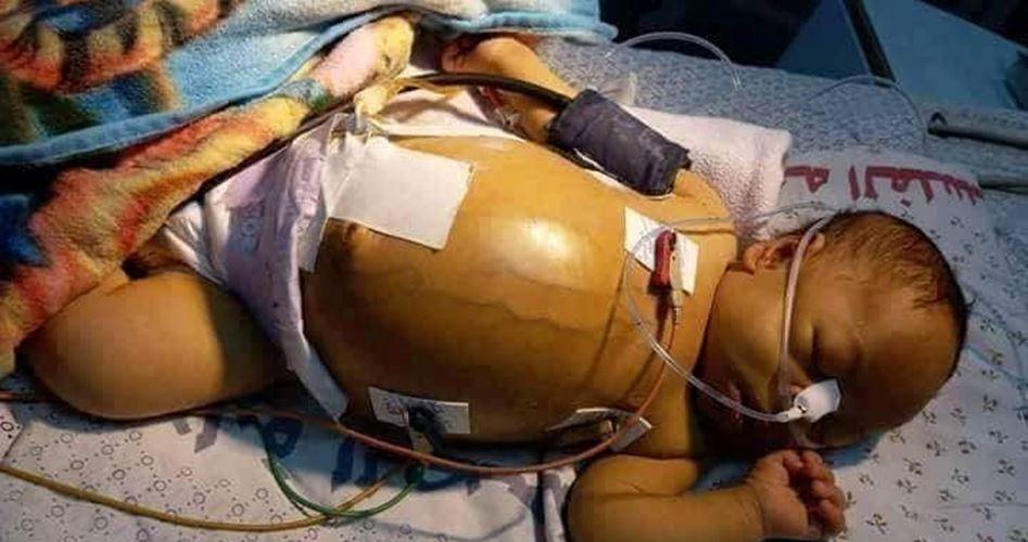 Photo of وفاة الرضيع حمزة طومان بعد رفض الصحة تغطية تكاليف علاجه