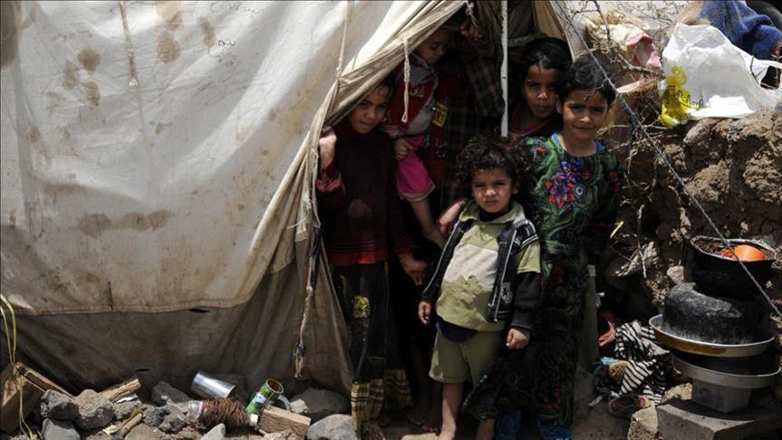 Photo of أجسادهم تحولت إلى هياكل عظمية.. الجوع يلتهم أطفال اليمن