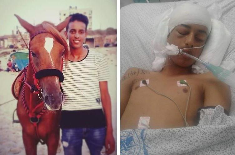 Photo of استشهاد طفل متأثرًا بإصابته في مسيرة العودة شرق البريج