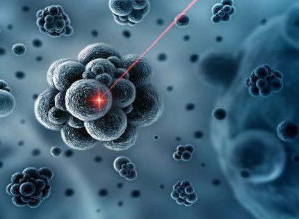هذه هي التكنولوجيا التي تحاول قتل السرطان