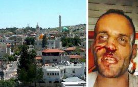 كفر برا: الشرطة تعتدي على وليد عاصي بوحشية
