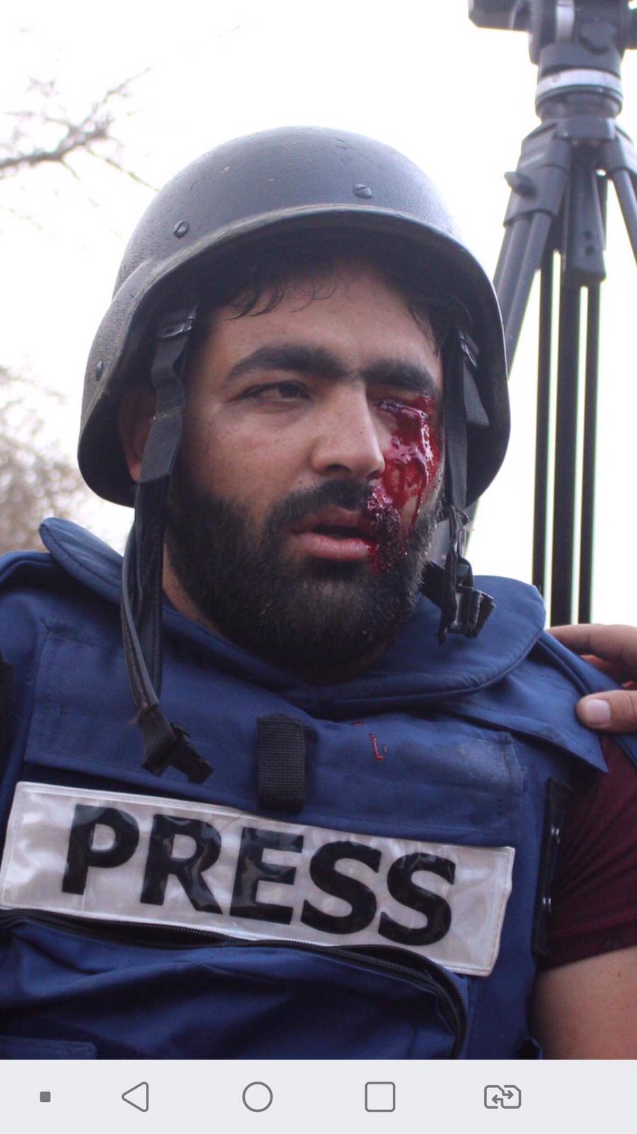 Photo of مواجهات في الضفة وإصابة مصور صحفي في الخليل